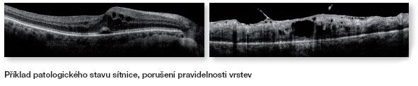 OCT_pathology